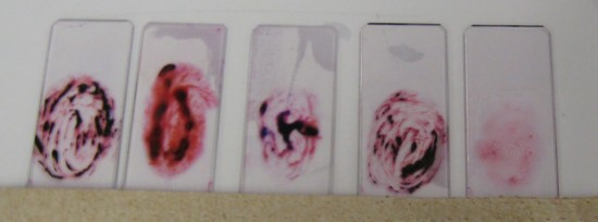 Look Up A Number >> Gram Stain